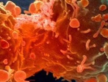 'Guided chemotherapy missiles' will only target cancer cells