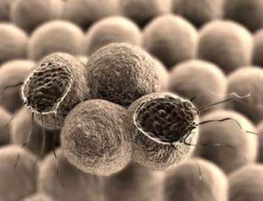 Customised nanodiscs may kill cancerous tumours
