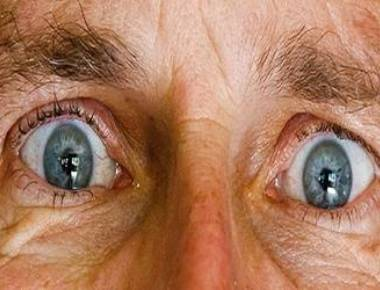 Cataracts may increase depression in elderly