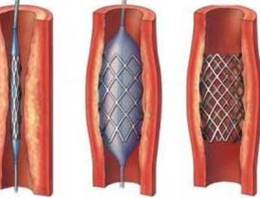 Heart of the matter: Coronary stents get cheaper by up to 85%