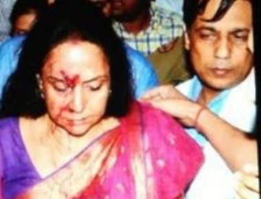 BJP MP Hema Malini injured in road accident