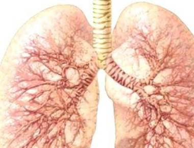 Middle-aged at greater risk of late stage lung cancer