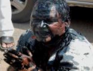 Shiv Sena sacks partymen over ink attack on RTI activist